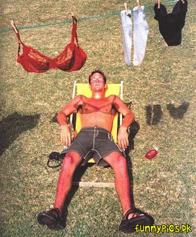 Sunburn - Collection of funny sunburn photos